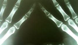 EFA capture fingers
