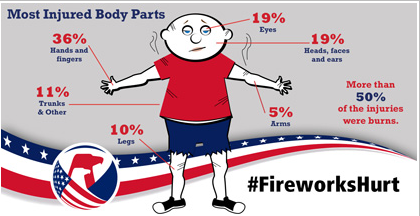 Fireworks Hurt graphic